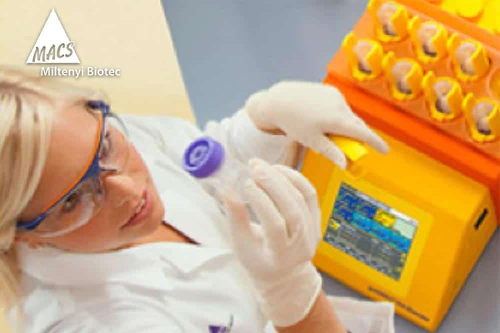 CRM Strategie- und Prozessberatung // Miltenyi Biotec